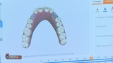 How Invisibly Aligned is Revolutionizing Invisalign