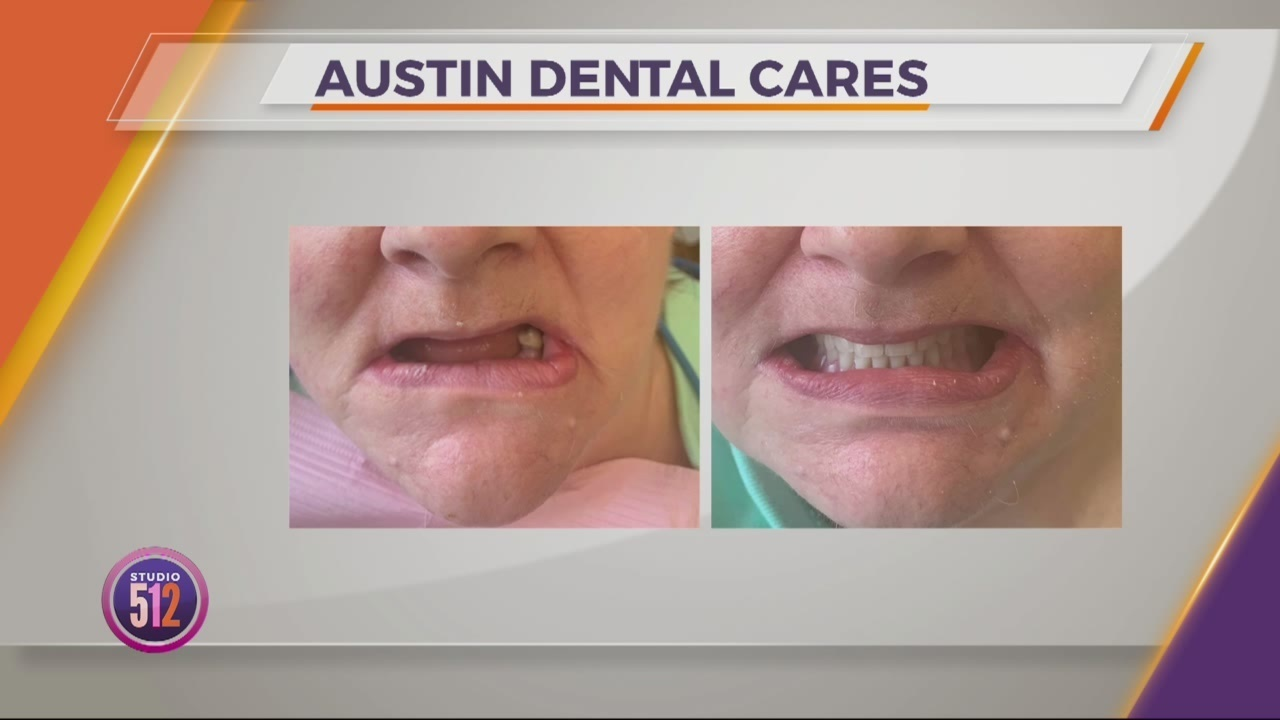 Personal In-Home Dental Care with Austin Dental Cares
